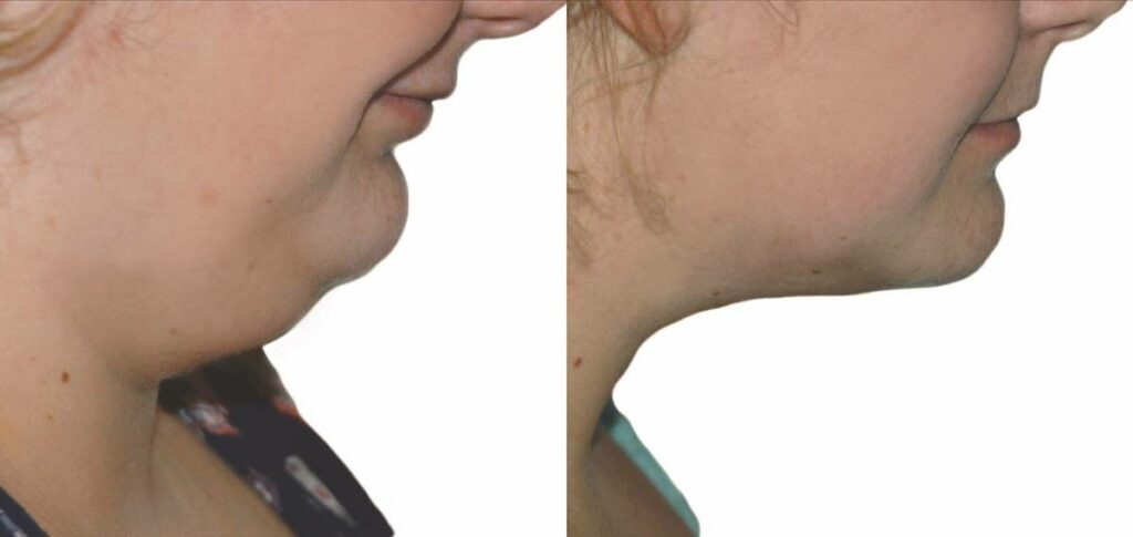 Lift-Before-and-After-09